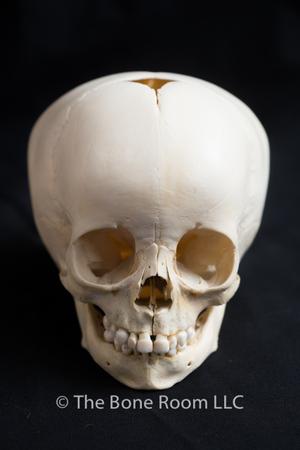 real human skulls for sale- the bone room, Human Body