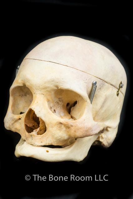 normal human skulls, Human Body