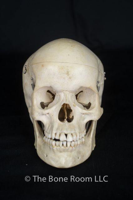 pathological human skulls for sale - the bone room, Human Body
