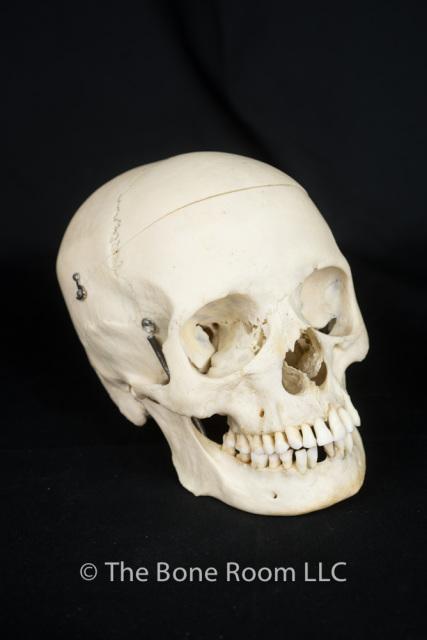 Pathological Human Skulls For Sale The Bone Room