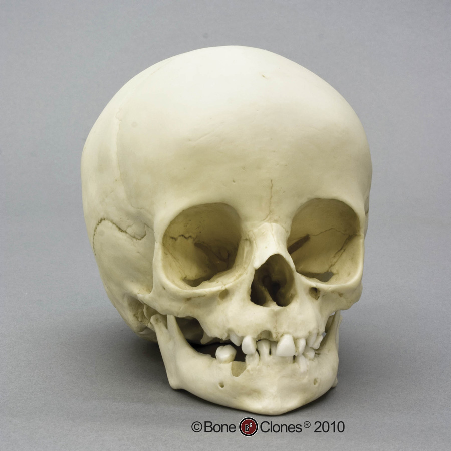 Bone Clones 174 Child Skull 14 Month Old
